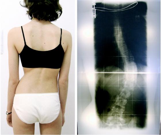 operation skoliose