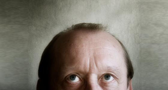 Kriegen kleine Männer eher eine Glatze?