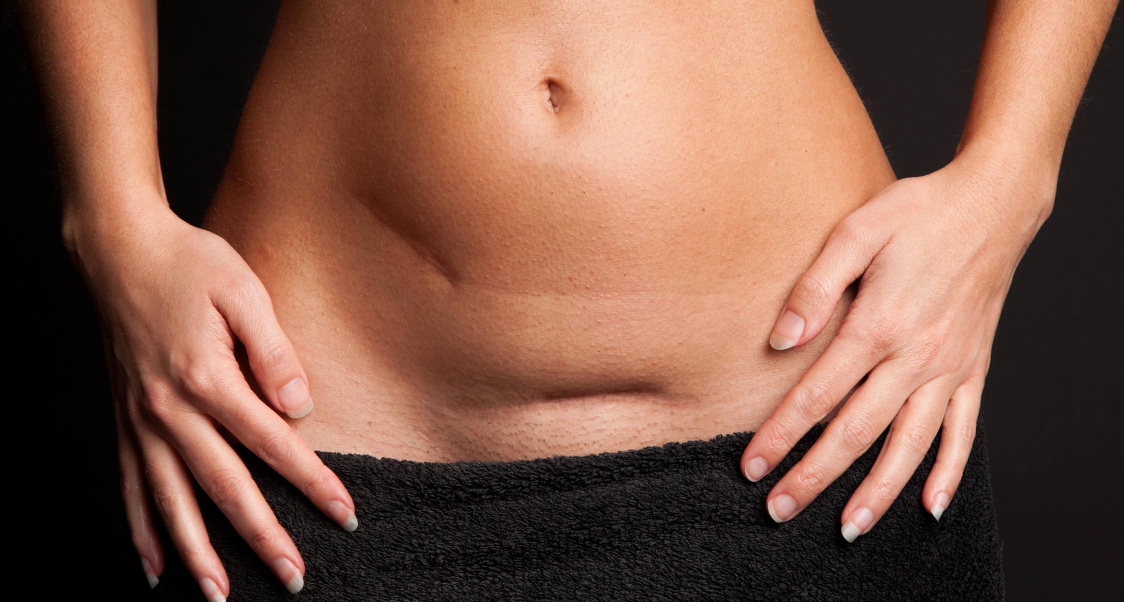 Stillen reduziert Schmerzen nach Kaiserschnitt
