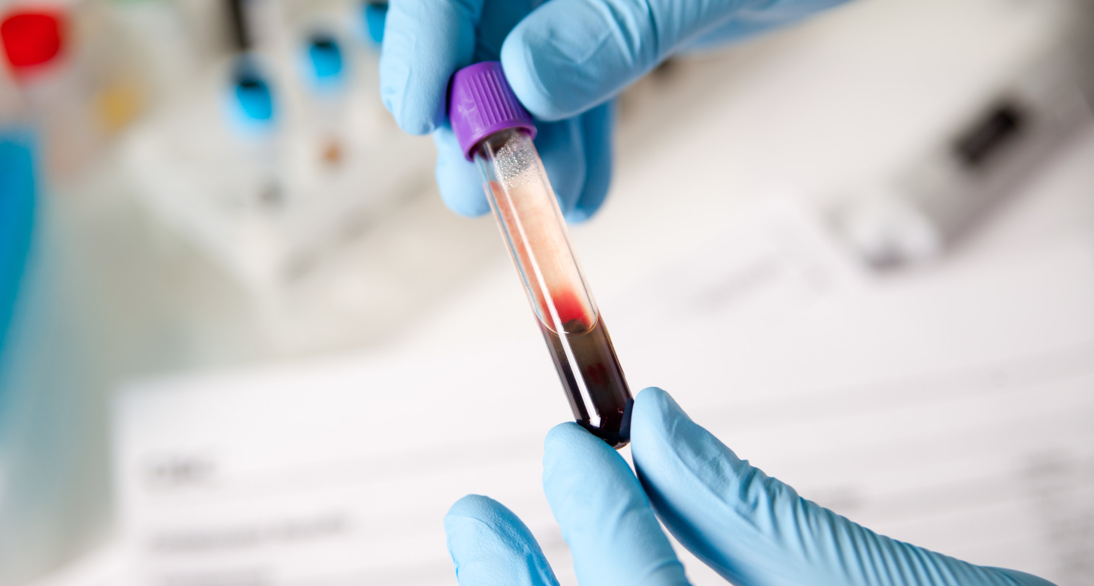 Bluttest Zeigt Frühzeitig Alzheimer Risiko An