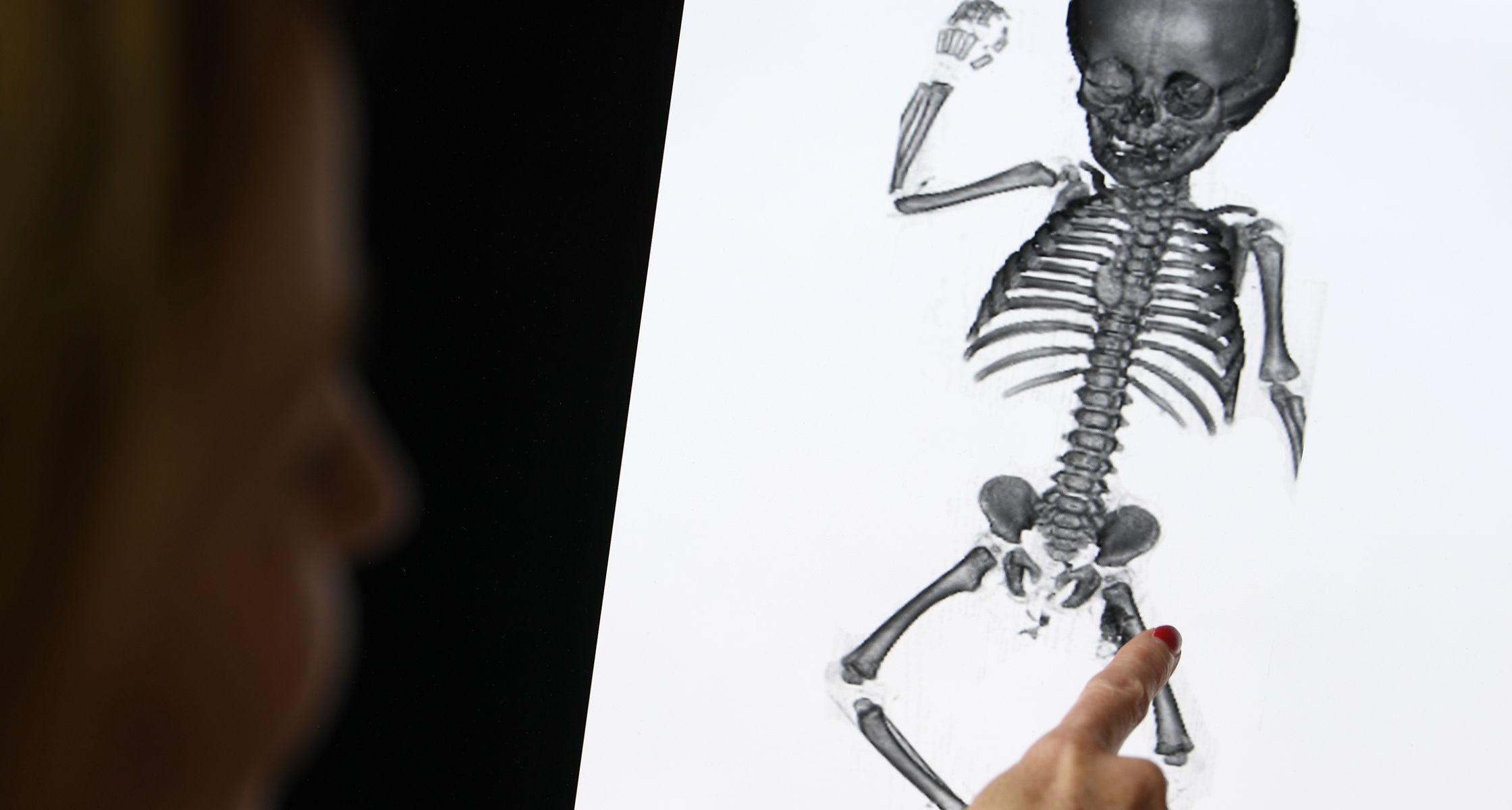 Letzte Ruhe für vergessene Kinder aus Anatomie der Universität Halle
