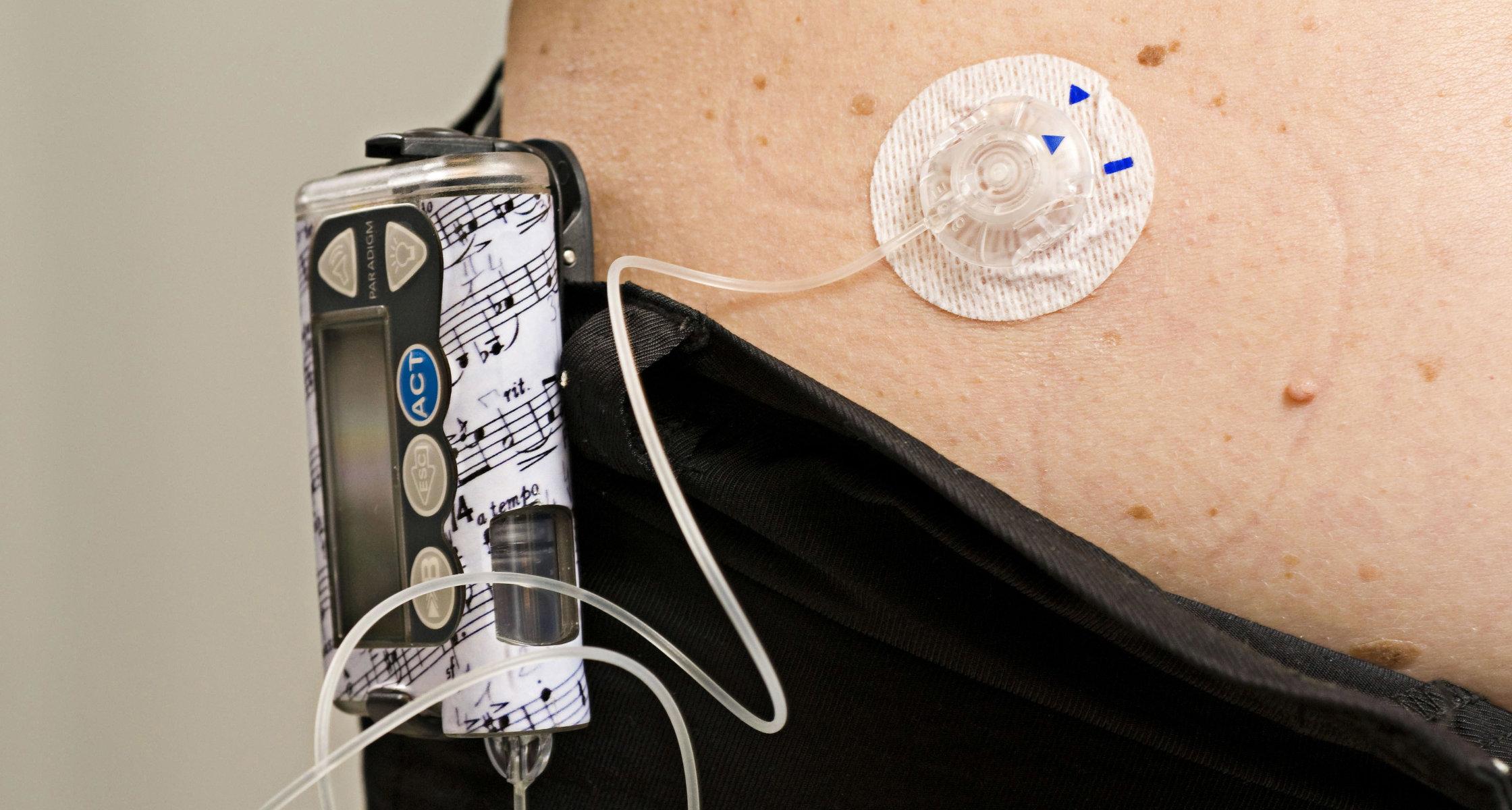 Künstliche Bauchspeicheldrüse bewährt sich bei Typ-1-Diabetes