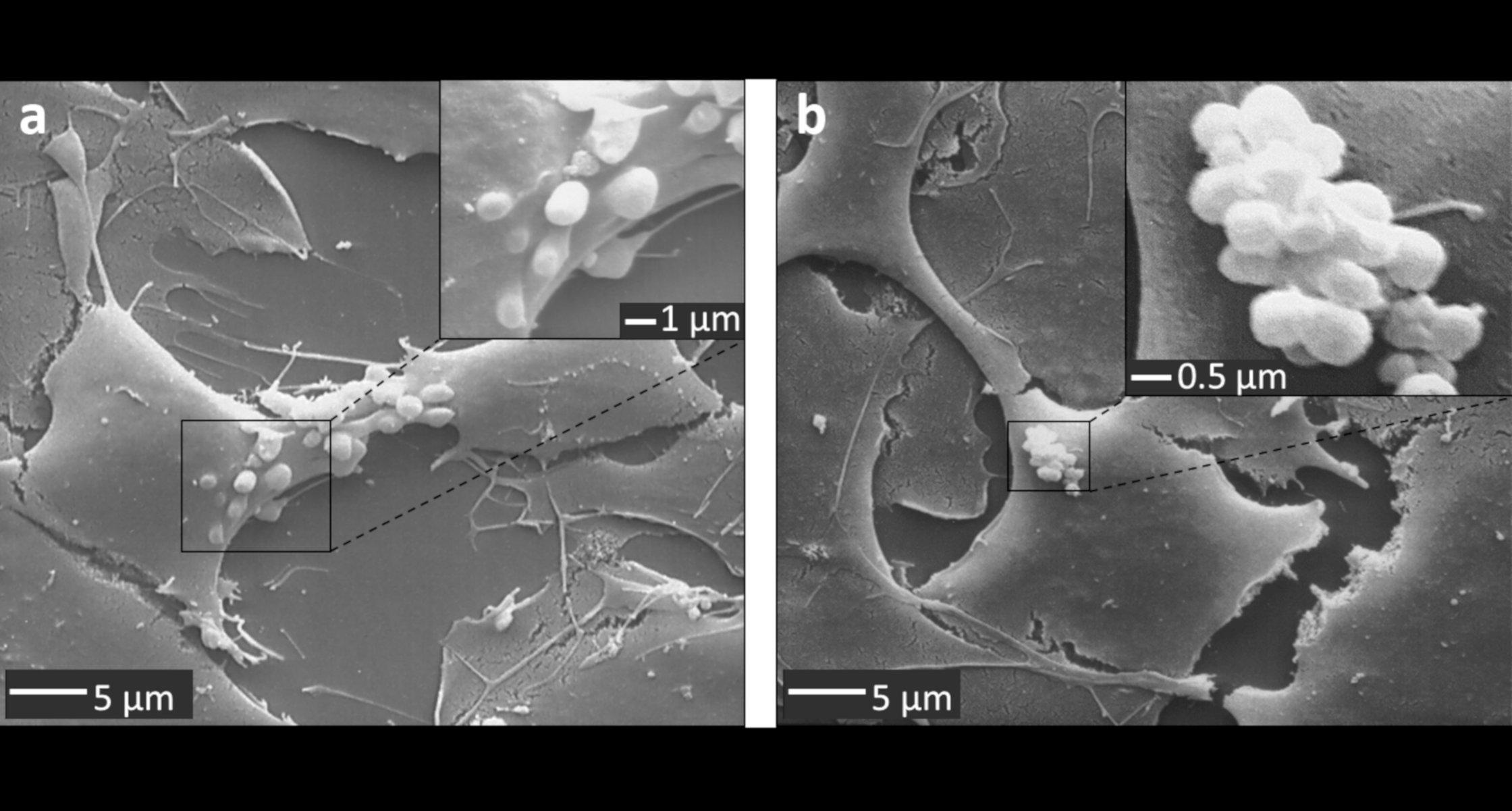Neuer Mechanismus Der Blut Hirn Schranke Entdeckt