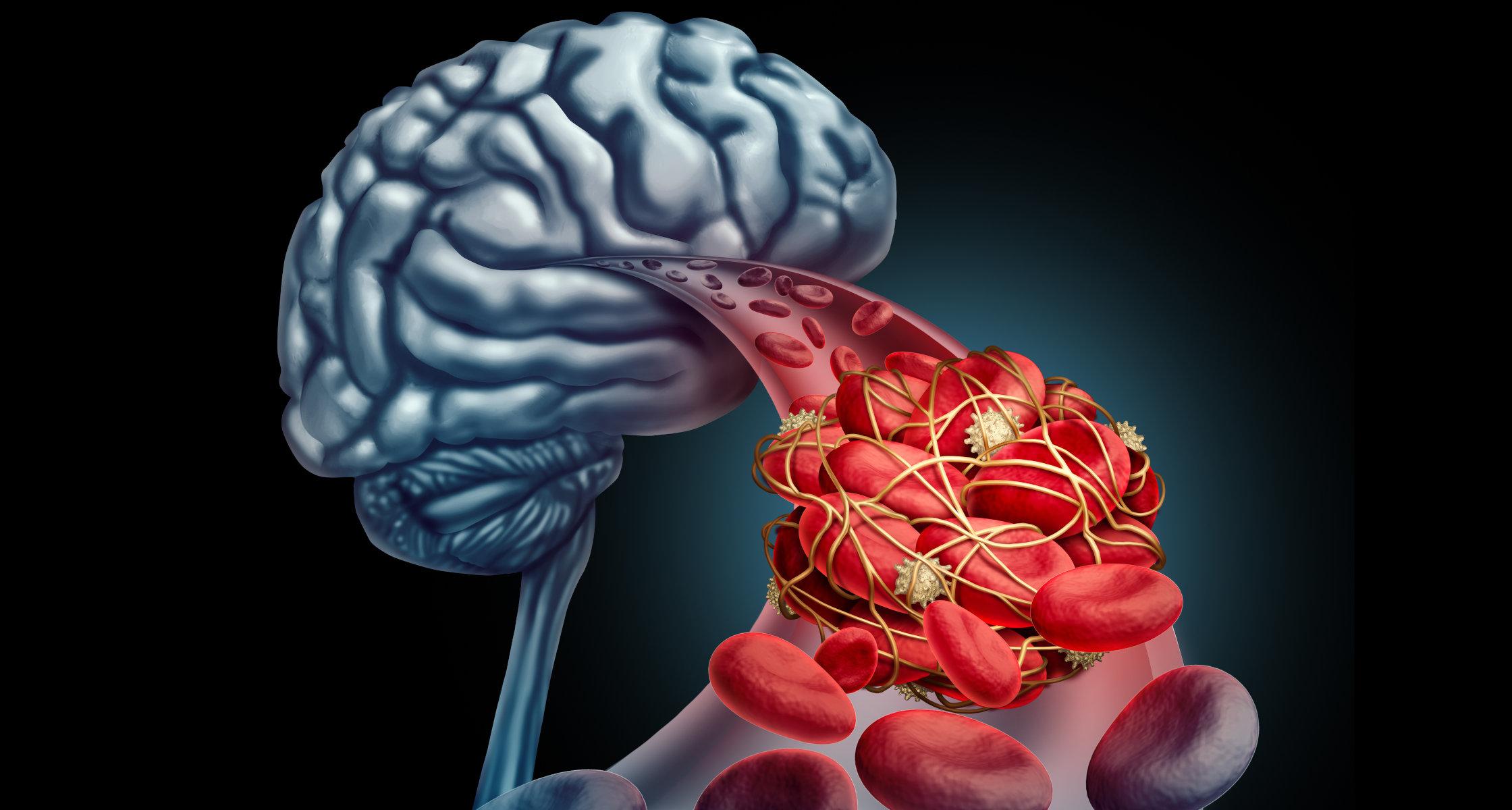 Schlaganfall Subarachnoidalblutungen Werden Weltweit Seltener