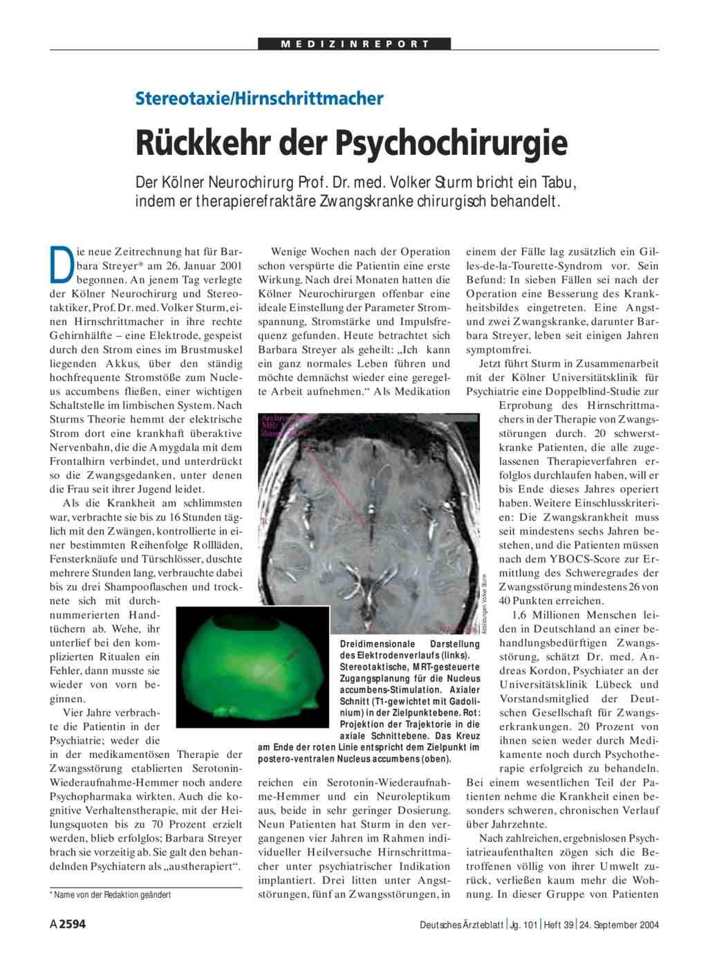 Stereotaxiehirnschrittmacher Rückkehr Der Psychochirurgie