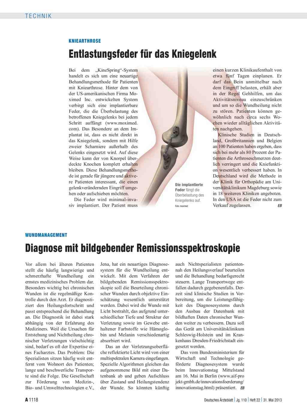 Kniearthrose: Entlastungsfeder für das Kniegelenk