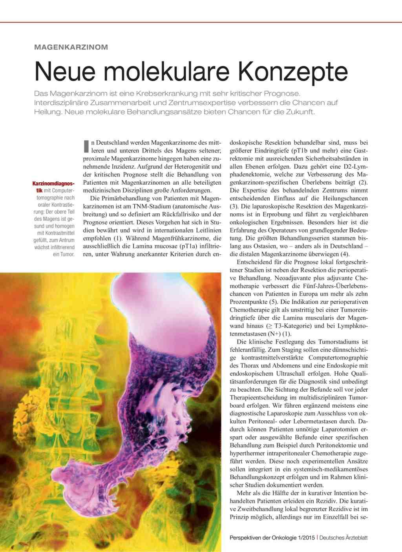 Magenkarzinom: Neue molekulare Konzepte