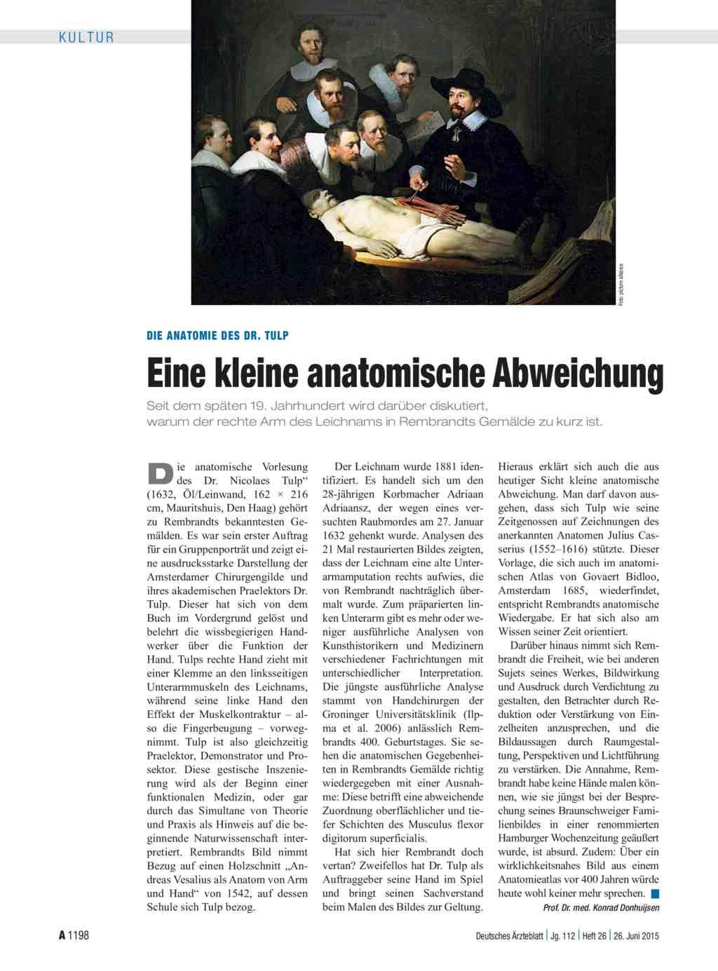 Schön Anatomie Des Dr. Tulp Ideen - Anatomie Ideen - finotti.info