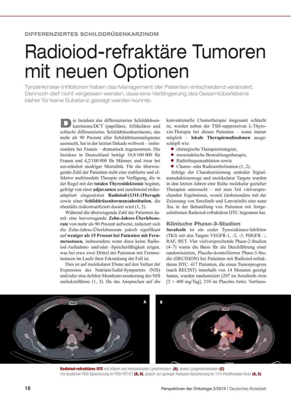 Gemütlich Epitrochlear Knoten Zeitgenössisch - Menschliche Anatomie ...