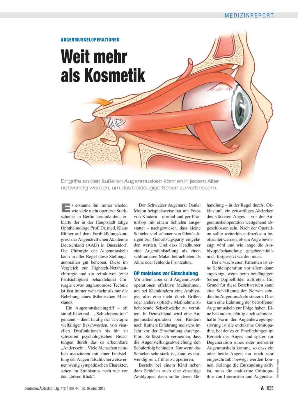 Augenmuskeloperationen: Weit mehr als Kosmetik