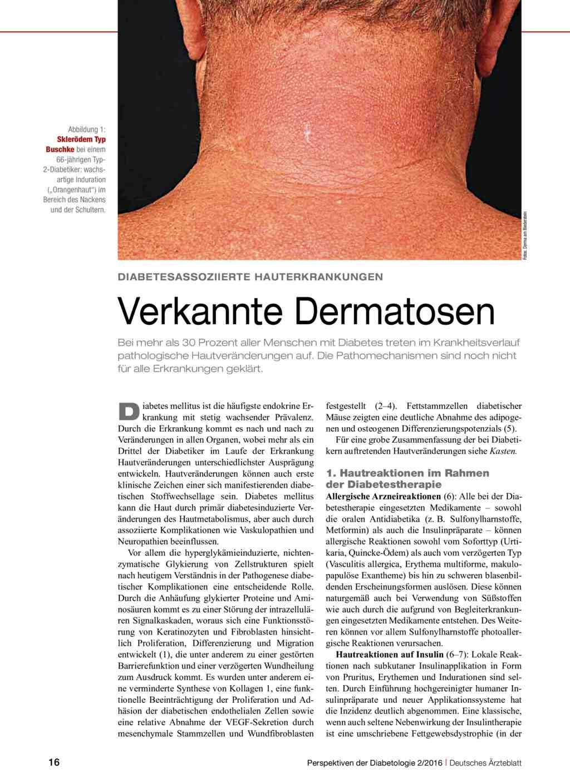 klinische diabetologie german edition