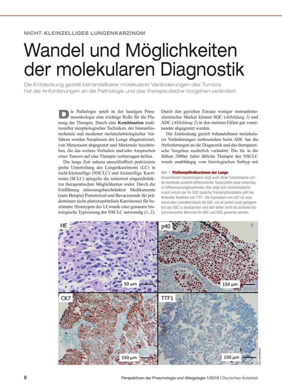 Nicht-kleinzelliges Lungenkarzinom: Wandel und Möglichkeiten der ...
