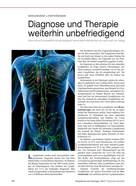 Sekundäre Lymphödeme: Diagnose und Therapie weiterhin unbefriedigend